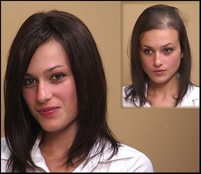 Hair Transplants are Not Effective for Female Pattern